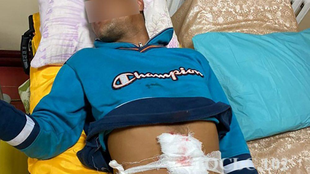 Поблизу Підволочиська роми влаштували різанину – молодий чоловік отримав важке поранення
